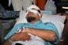 Penyidik KPK Novel Baswedan tiba untuk menjalani perawatan di RS Jakarta Eye Center, Jakarta, Selasa (11/4).